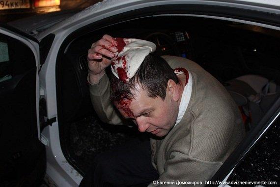 Вологда: Оппозиционному лидеру раскроили череп