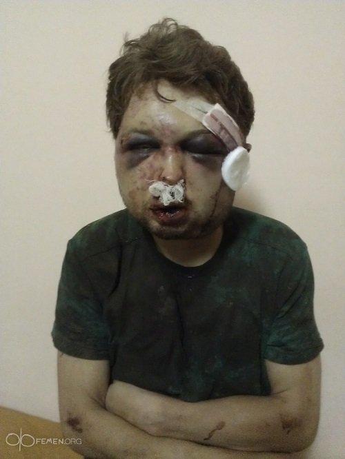 Методы Путиных — Гундяевых: Лидер, три активистки Femen и журналист избиты и похищены в Киеве
